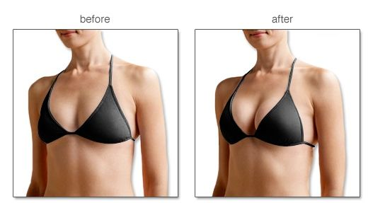 benefits of push up bra